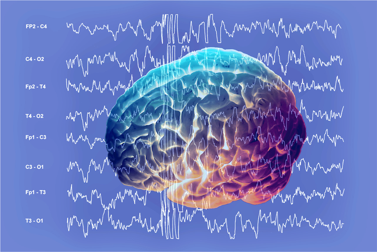 Recognition and management of seizures in children in